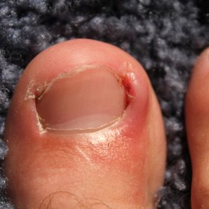 Ingrown_toenails