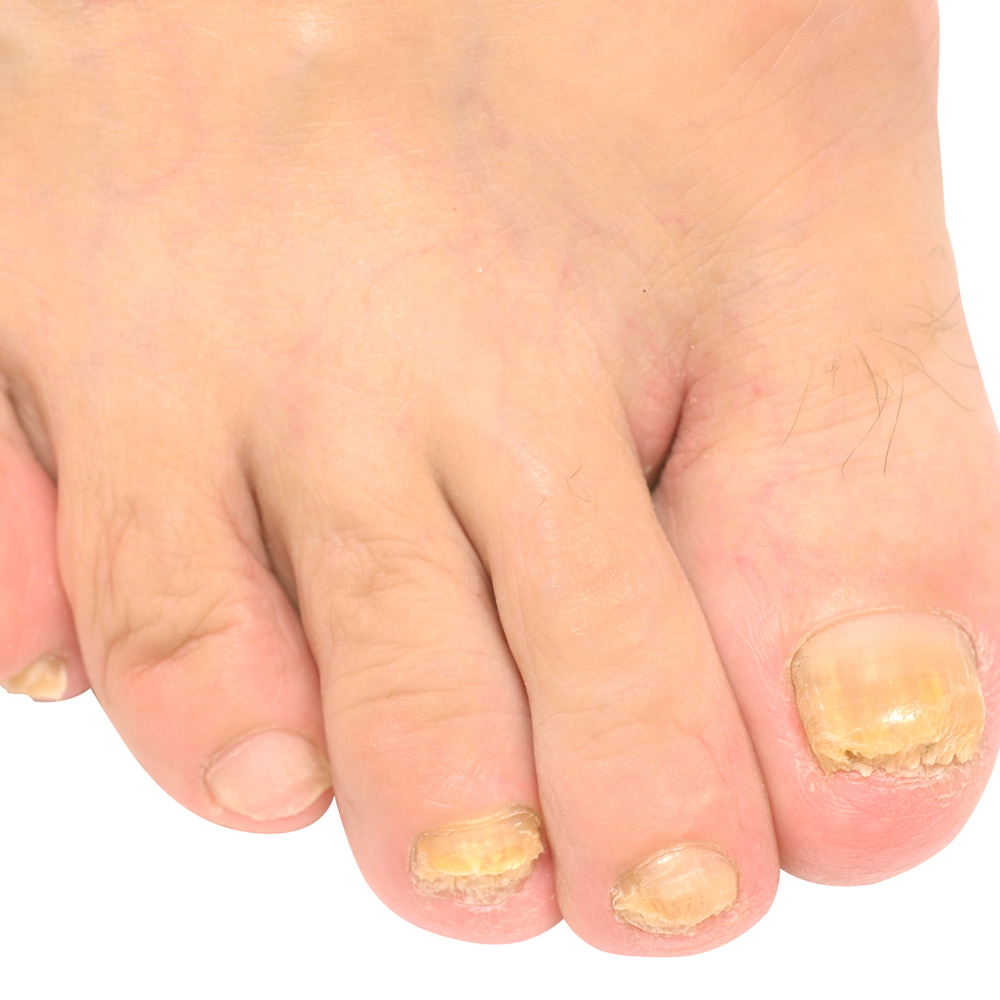 I think I have toenail fungus - Columbus Foot and Ankle